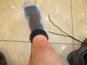 My swollen shin